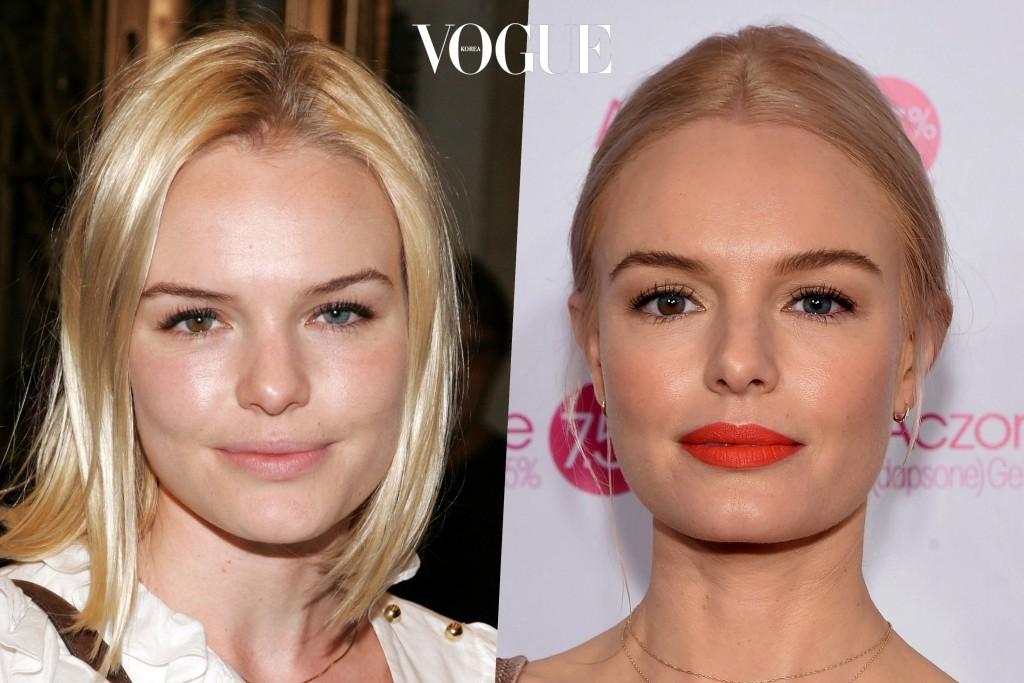 같은 얼굴, 심지어 10년 전 얼굴임에도 불구하고 지금이 훨씬 어려 보이는 이유?! Kate Bosworth