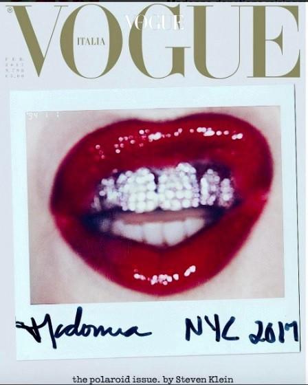 2017년 2월, 이탈리아  커버에 다이아몬드로 치아를 장식한 누군가의 얼굴이 등장하며 이 현상은 정점을 찍게 됩니다.