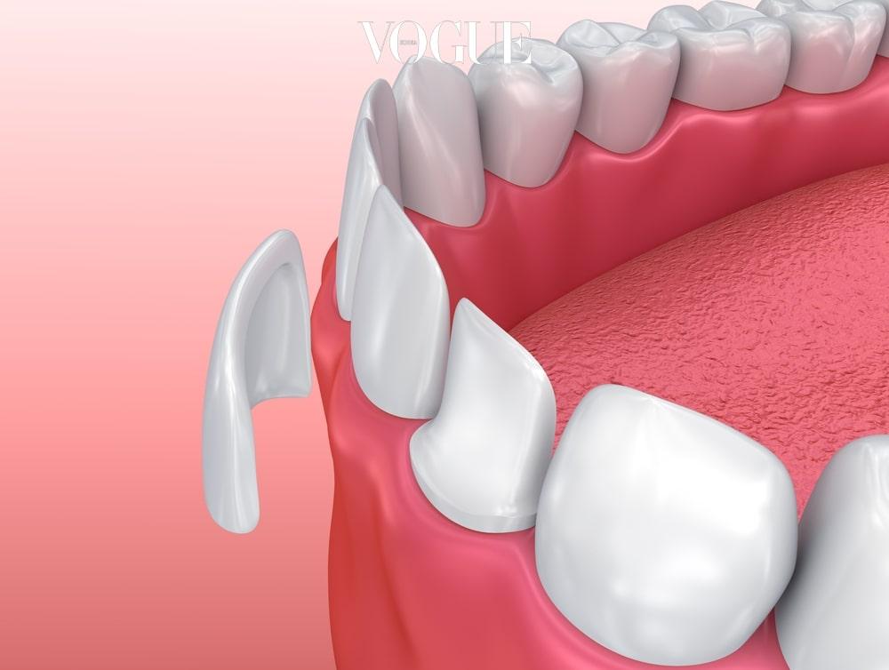 가장 중요한 건 삭제의 양이에요. 자신의 치아를 갈아내는 양이 적으면 적을수록 좋은거죠. 그래서 요즘 대세로 떠온 것이 '미니쉬치아디자인'입니다. 에나멜 층을 0.2mm 미만 다듬은 다음 치아 와 성분과 유사한 '장석'이 함유된 세라믹 보철을 붙이는 시술이죠. 이렇게 하면 오히려 치아 강도가 증가하고, 기존에 마모되거나 파절된 치아를 어린 시절로 돌려 놓는 효과가 있습니다. 치아 미백효과까지 있어, '치아 동안술'이라 불리기도 합니다. 게다가 대게 하루면 감쪽같이 완성되기 때문에 부담없이 시도할 수 있는 치아 안티에이징 시술이죠.