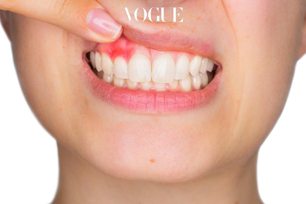 물론 예쁜 스마일을 만들기 위한 미용적 측면도 있죠. 하지만 잇몸 성형의 보다 중요한 목적은 잇몸과 치아 건강에 포커스가 맞춰져 있습니다. 치아와 맞닿아 있는 곳에 자리 잡은 염증 주머니를 제거해 선홍빛 잇몸과 충치 없는 치아를 만들어 주는 방법인 것이죠.