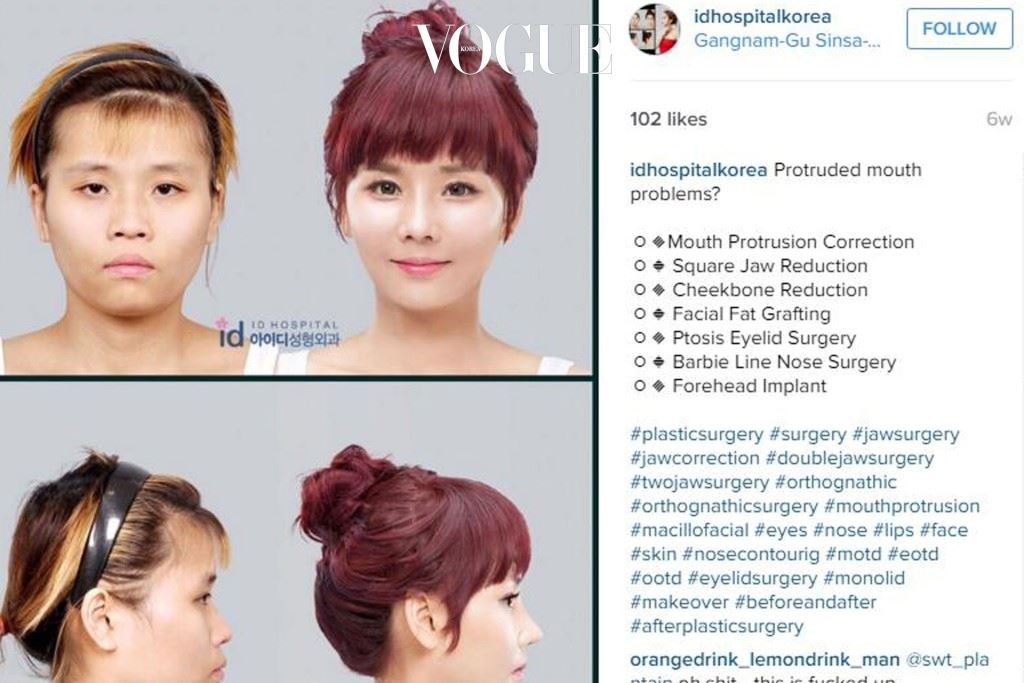 박상훈 원장이 대표를 맡고 있는 ID 성형외과가 고객들이 얼만큼 변화했는지 보여주고 있다.
