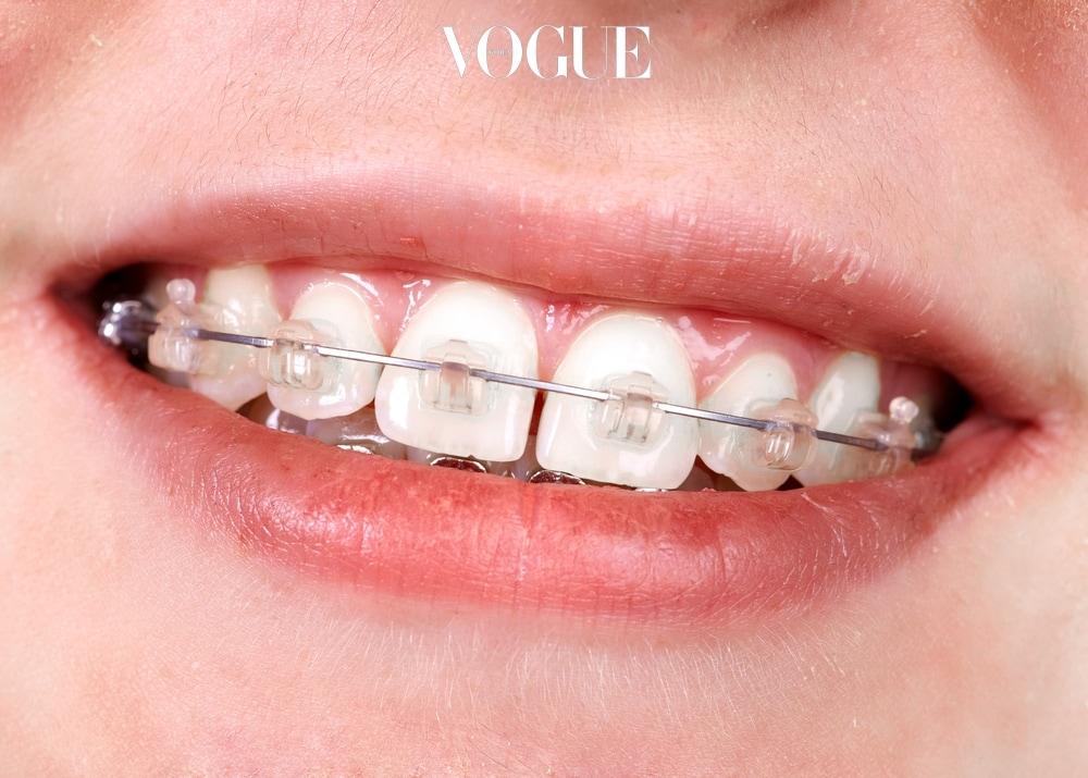 치아 교정과 치아 성형은 다릅니다. 교정을 하면 치아의 정렬이 바로 잡혀 교합이 좋아 질 수 있지만 치아의 모양이 변하지는 않습니다. 오히려 오랜 시간 자기가 있던 자리에 맞게 마모되어있던 치아들이 세워지고 돌려지며 비쭉비쭉 못생긴 얼굴을 드러내기도 하죠.